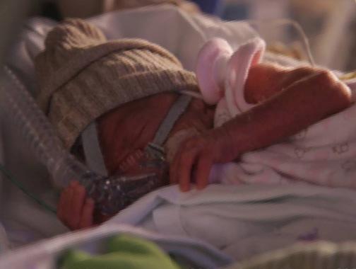 Cuidado diferencial del niño prematuro extremo en sus primeros días de vida